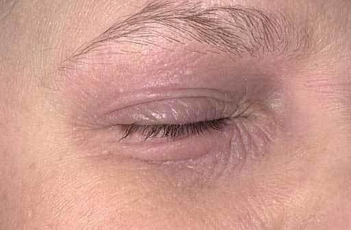 Dermatitis Atopica ojo