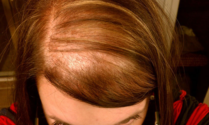 alopecia caida del pelo