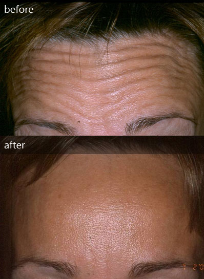 Arrugas frontales