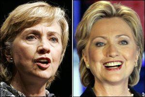 Botox y política