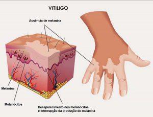 vitiligo-1